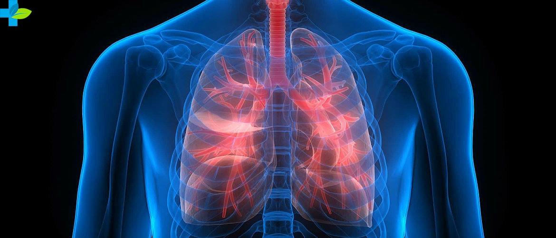 Диссеминированный туберкулез