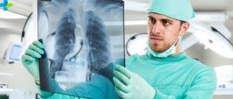 Диагностика туберкулеза легких