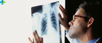 Диагноз очаговый туберкулез