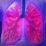 Симптомы туберкулеза