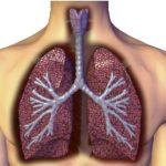 Туберкулез открытой формы