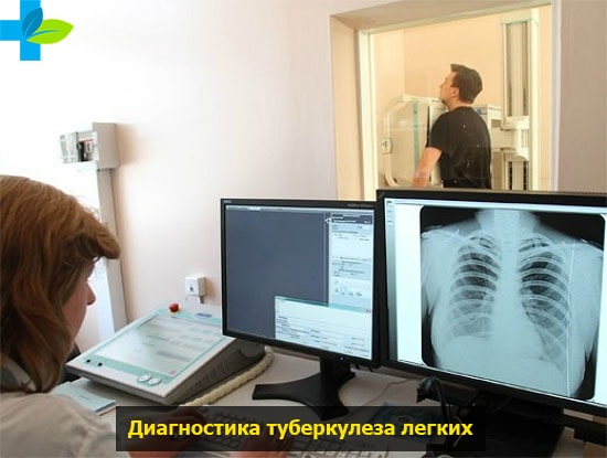 Как лечить туберкулез легких в домашних условиях