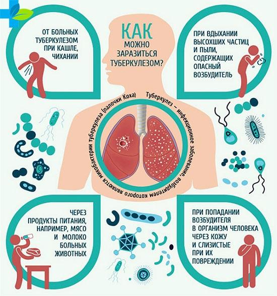 Всегда ли есть температура при туберкулезе легких