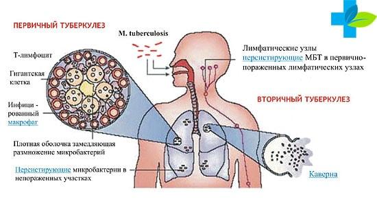 Есть ли хрипы при туберкулезе