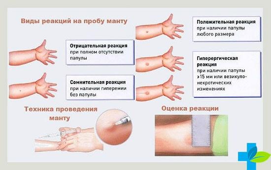 Норма Манту в 2 года: реакция у детей, у ребенка размер 2 мм, таблица, сколько должна быть, температура, проба, нужно ли делать