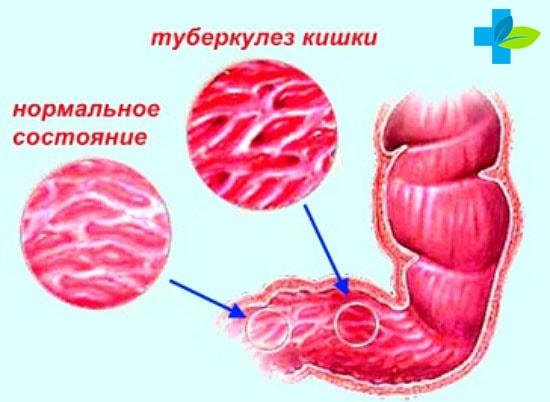 Туберкулез кишечника симптомы первые признаки