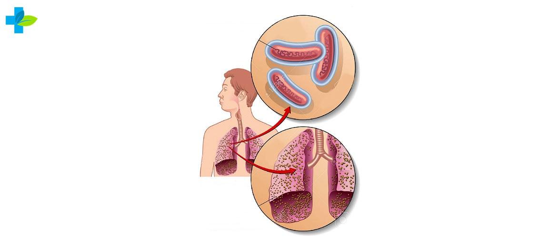 Диагноз туберкулез
