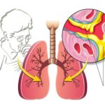 Мокрота при туберкулезе