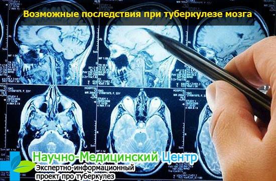 Энцефалит головного мозга форум