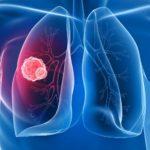Этиология туберкулеза легких