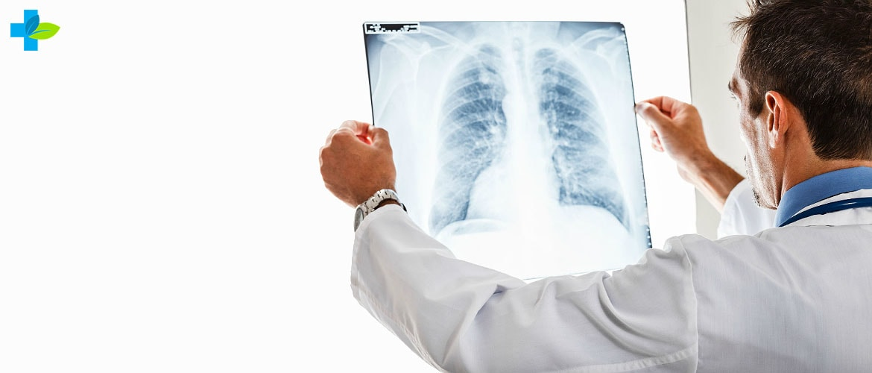 Туберкулез легких на рентгене