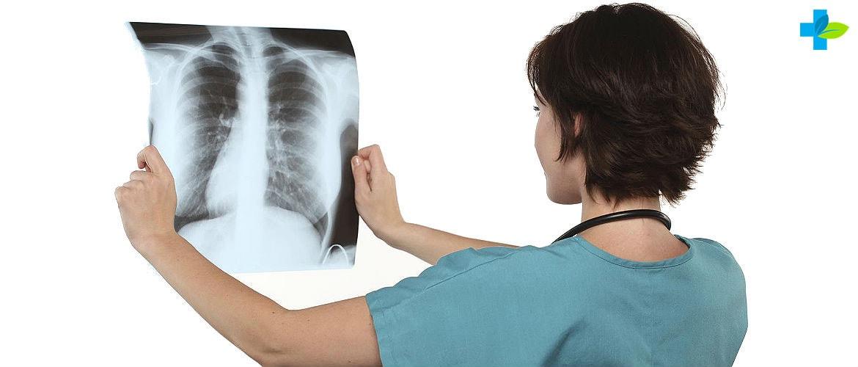 Первые признаки и симптомы туберкулза у детей