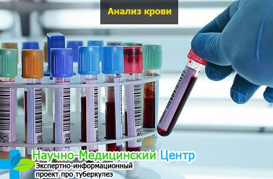 Анализ крови на глюкозу подготовка