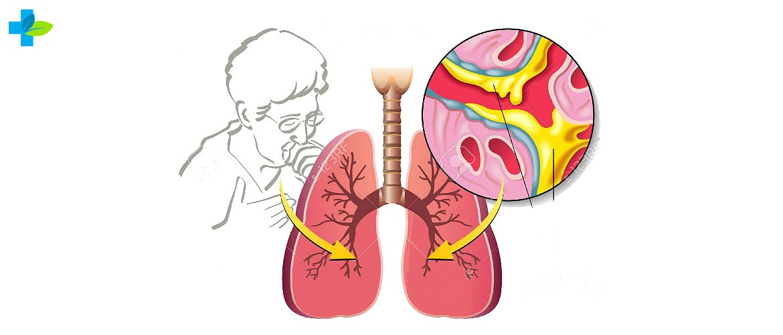 Анализ мокроты на туберкулез