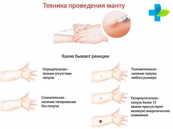 Какая должна быть реакция Манту в норме у детей 1 года: таблица размеров пробы у грудничка, фото и мнение доктора Комаровского