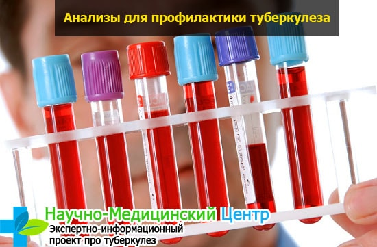Можно ли узнать наличие туберкулеза по крови