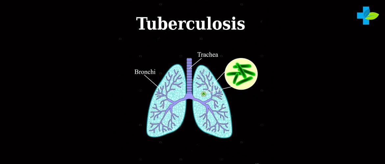 Анализ крови при туберкулезе - главные показатели