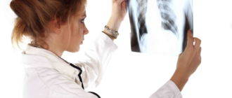 Кавернозная пневмония
