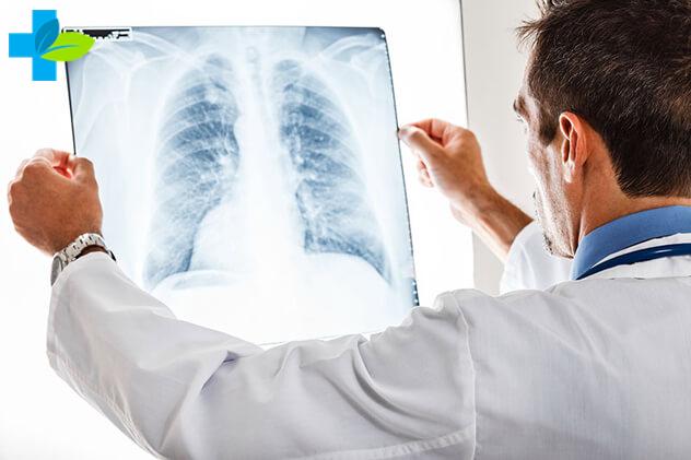 Милиарный туберкулёз