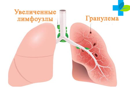 Симптомы саркаидоза