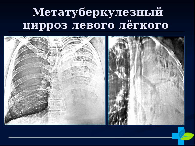 Цирроз левого лёгкого