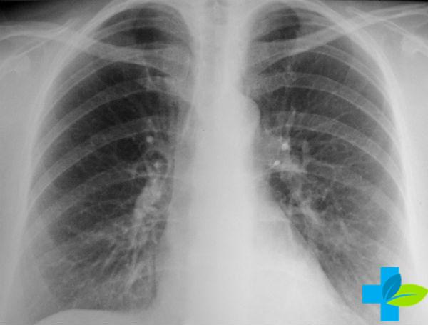 Кальцинаты лёгких
