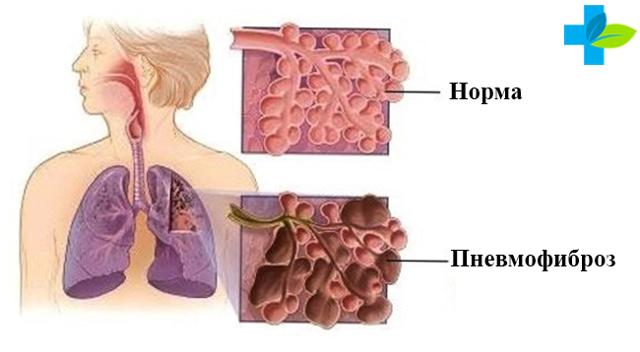пневмофиброзы в лёгких