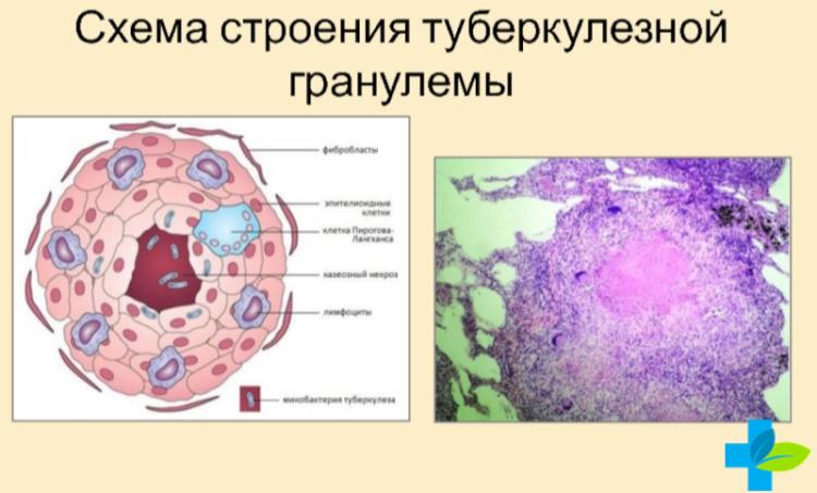 строение клетки туберкулёзной гранулемы