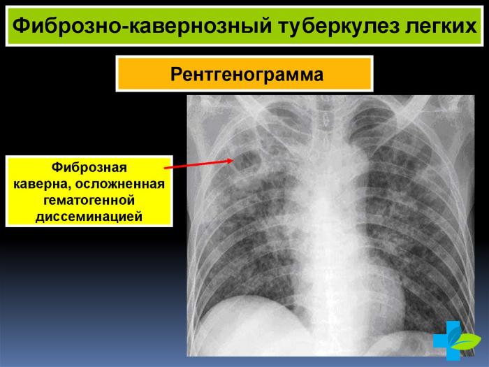 Фиброзный туберкулёз