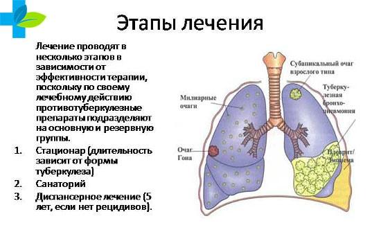 Как лечится туберкулез в домашних условиях 113