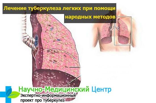 Лечение туберкулеза легких народными средствами в домашних условиях
